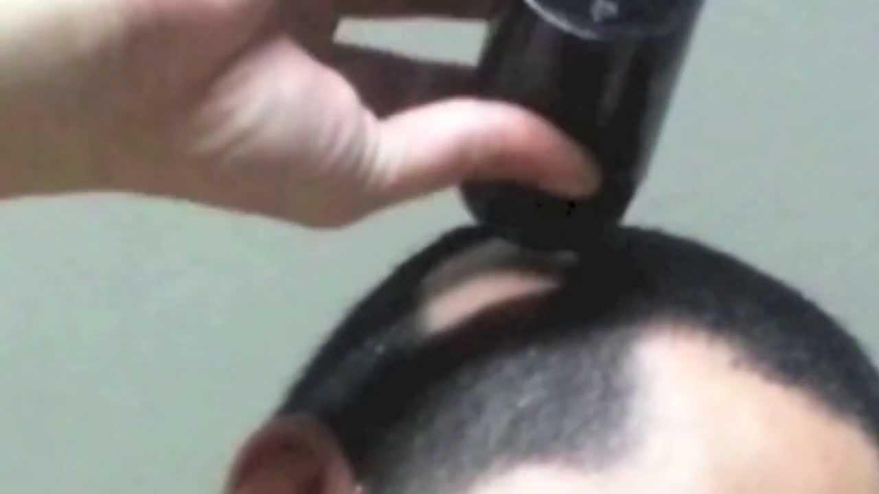 Alopecia Areata Bald Spot for Male: How to Hide Bald Spot ...