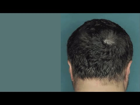 Hairstyles For Alopecia Areata : Drug restores hair growth in patients with alopecia areata youtube