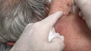 Dozens of Giant Blackheads Popped by Dr. Cyst Buster (Educational) thumbnail