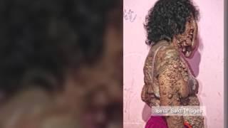 Repeat youtube video Indonesian na babae, tinakwil ng pamilya dahil sa kanyang kakaibang skin disease!