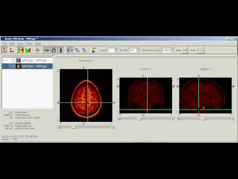 AMIDE 3D Imaging Software