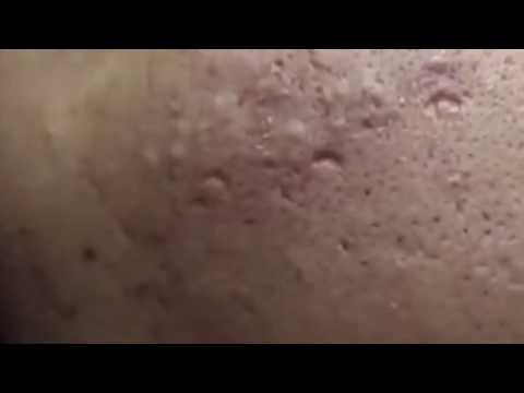 removal-blackheads-beauty-face-clinic-removal-acne