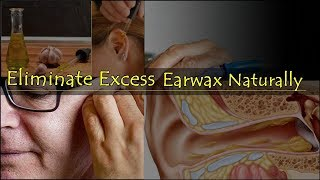 Eliminate Excess Earwax Naturally
