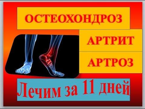 Бурсит лечение народная медицина