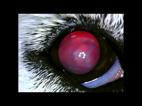 Катаракта глаза – причины, симптомы, профилактика и