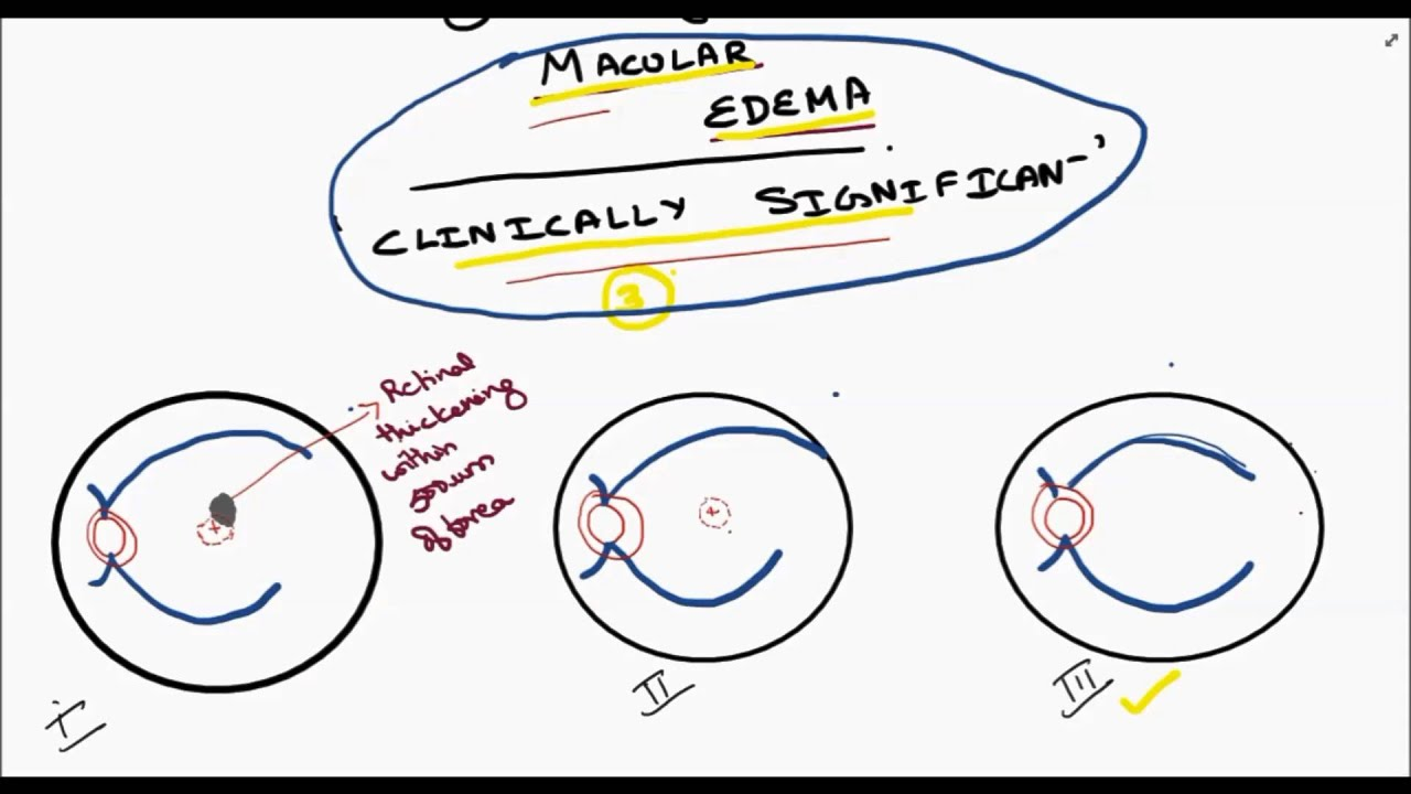 clinically significant macular edema youtube