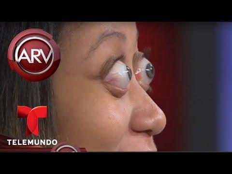 La mujer con los ojos más saltones del mundo sorprende a maquillista | Al Rojo Vivo | Telemundo