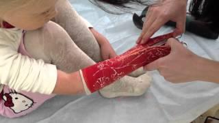 видео Восстановление после перелома. Что делать после гипса.