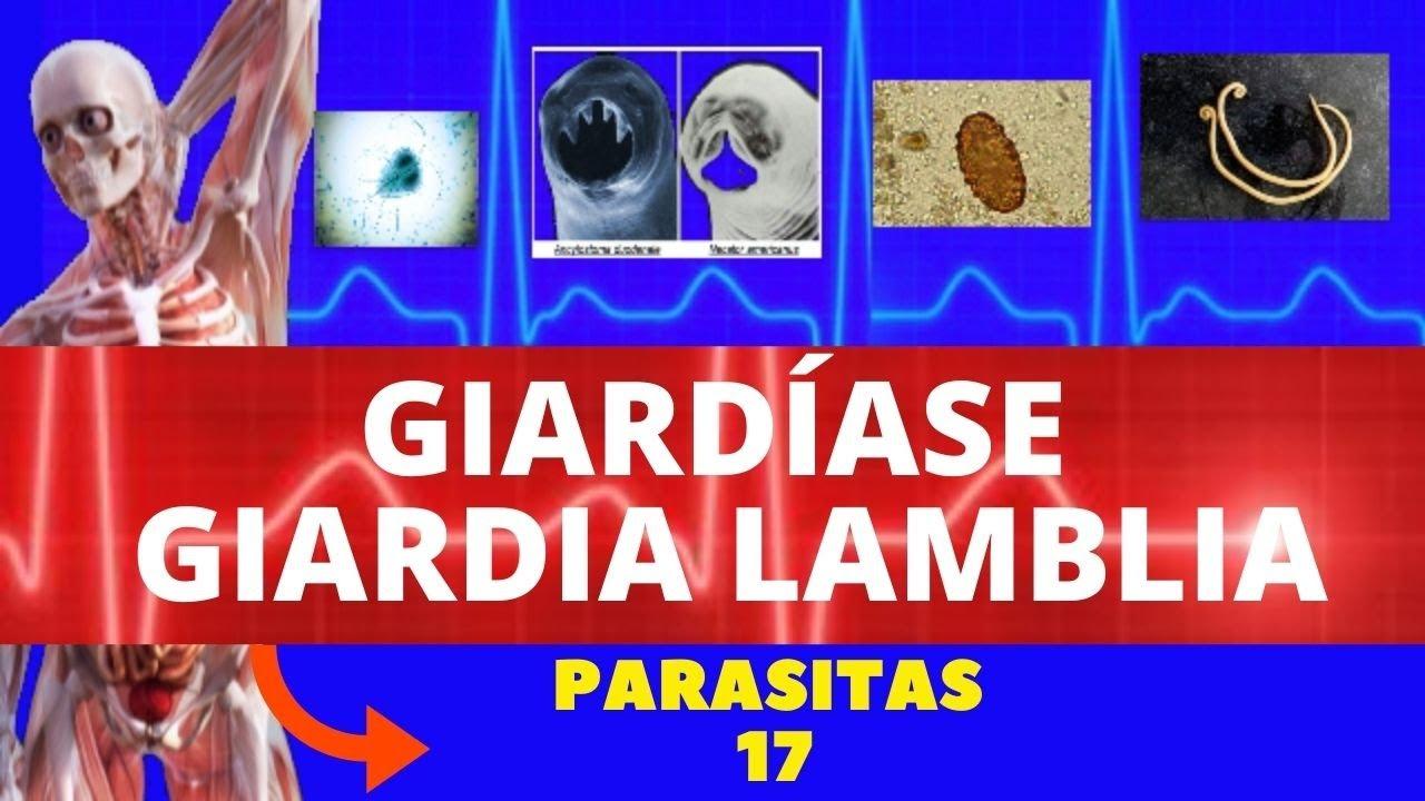 papiloamele de pe papa sunt îndepărtate instrumente de prevenire a viermilor pentru copii