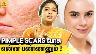 இந்த Type Pimples இருக்கவங்க Careful ஆ இருக்கணும் – Skin Specialist Dr Archana Exclusive Interview