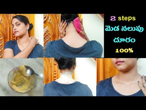 How to Get Rid of Dark Neck Fast  in 15 minutes in Telugu|Natural home remedies for black neck telgu