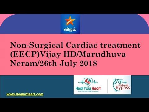 non surgical eecp vijay hd marudhuva neram 26th july 2018