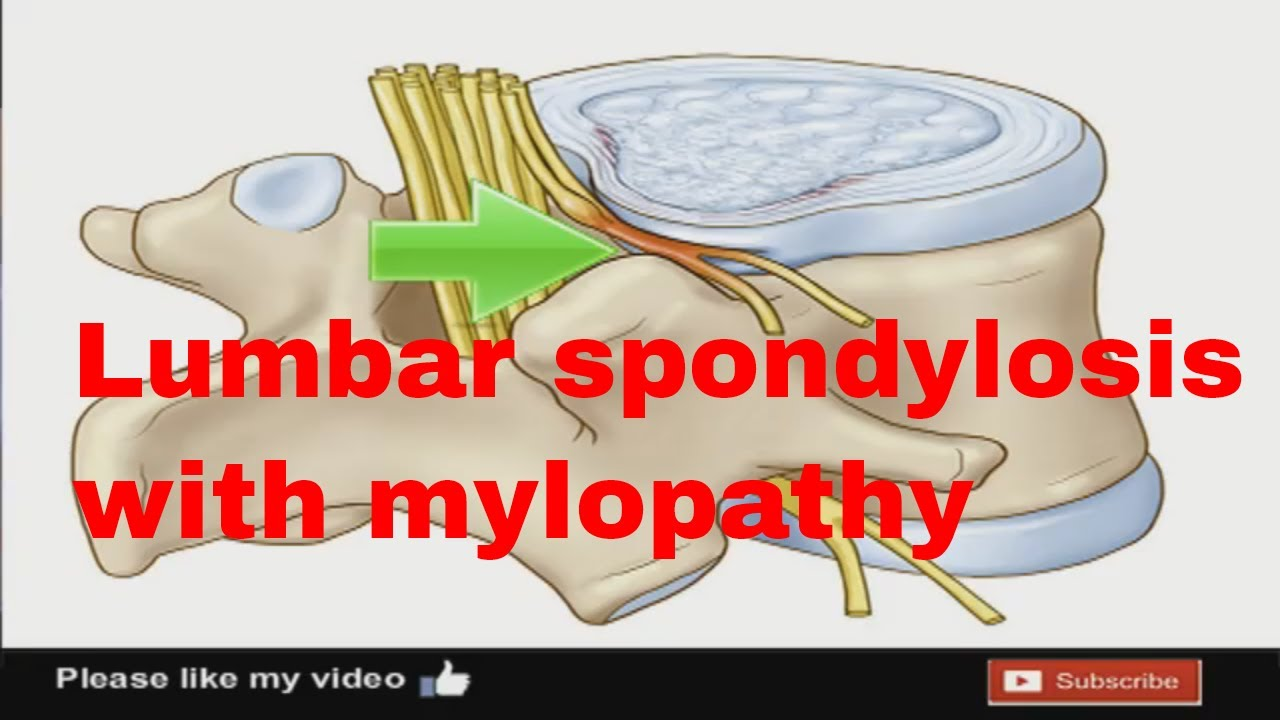 How to Treat Lumbar Spondylosis Naturally pictures