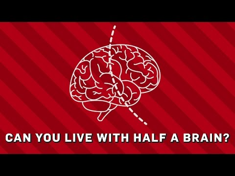 Can You Live With Half A Brain? - Brit Lab