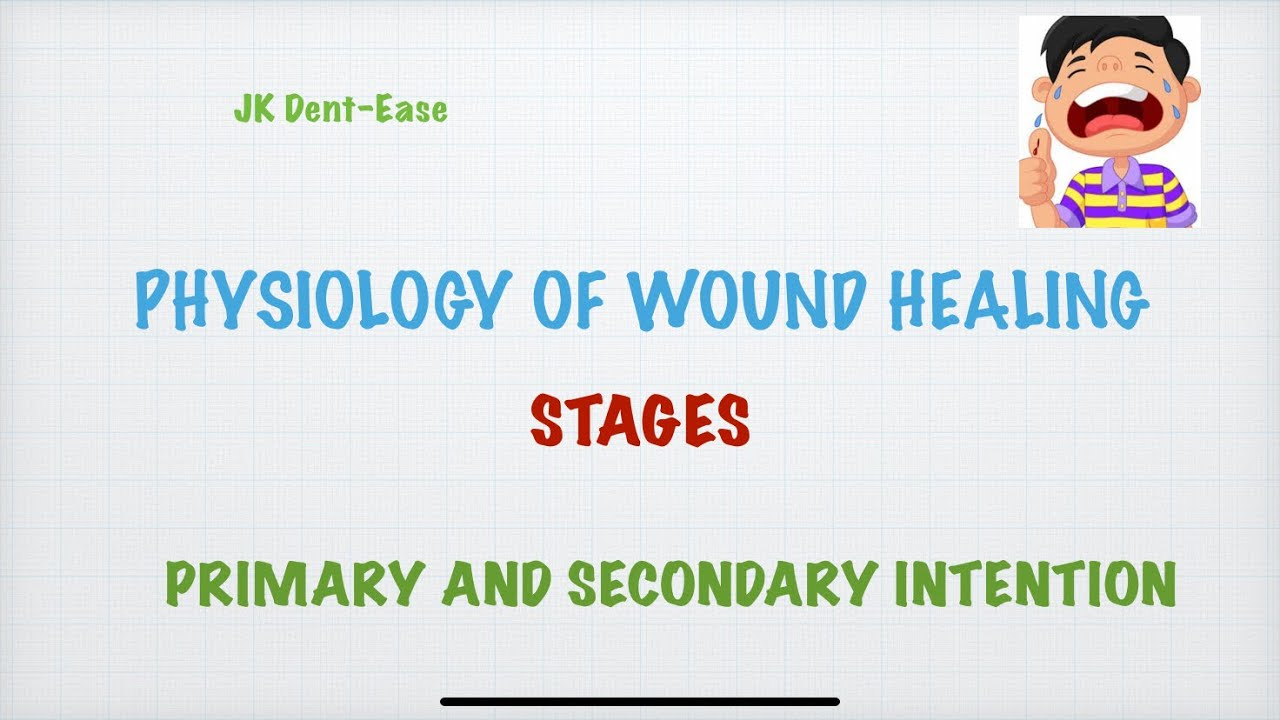 Download Physiology of Wound Healing-primary and secondary intention, granulation tissue,regeneration.