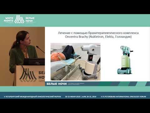Современные методы лучевой терапии в лечении рака молочной железы (Брянцева Ж.В.)