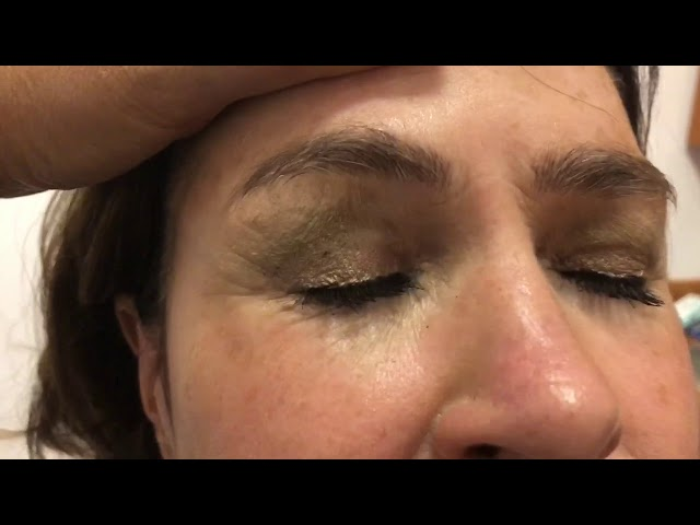 Closeup Incisions Facelift, Rhinoplasty, Blepharoplasty