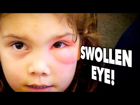 SWOLLEN EYE! (Periorbital Cellulitis?) | Dr. Paul