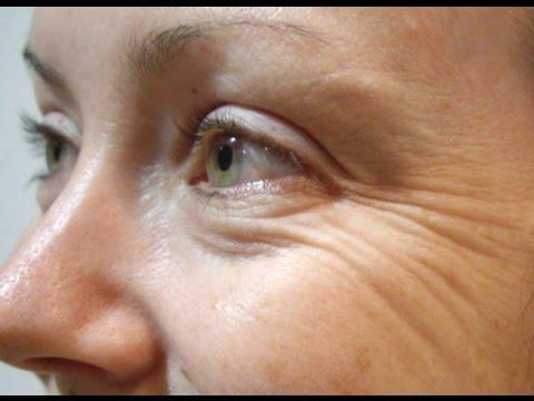 Cara Membuat Obat Awet Muda - Tips Tepat Mencegah Penuaan Dini Dengan Buah Semangka & Es Batu