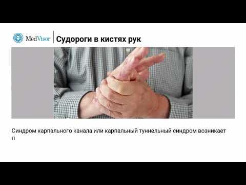 Судороги в кистях руки: причины