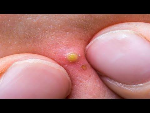 Jak schudnąć na nosie