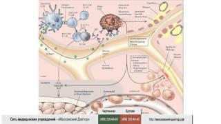 видео Аллергическая астма