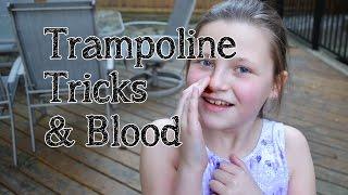 trampoline gymnastics tricks a bleeding nose   bethany g