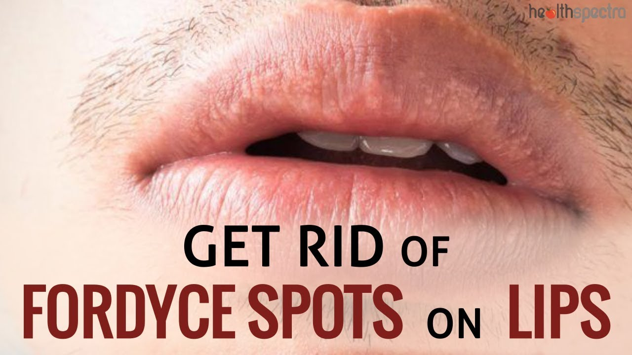 12 Ways To Get Rid Of Fordyce Spots On Lips | Healthspectra