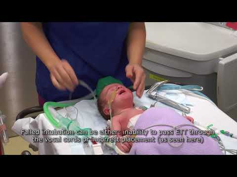 Paediatric Anaesthetics: Chapter 3 - Failed Intubation Neonate
