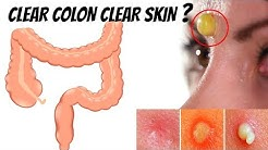hqdefault - Acne And Colon Hydrotherapy