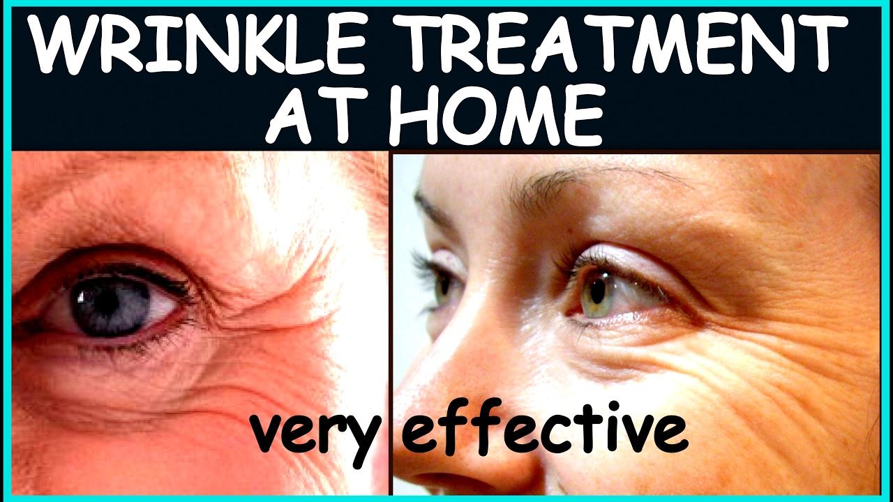 झुर्रियों से छुटकारा कैसे पाएं | How to Remove Wrinkles from Face at Home | Wrinkle  Treatment
