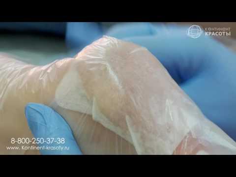 Как избавиться от натоптышей на ногах, чем лечить? Список