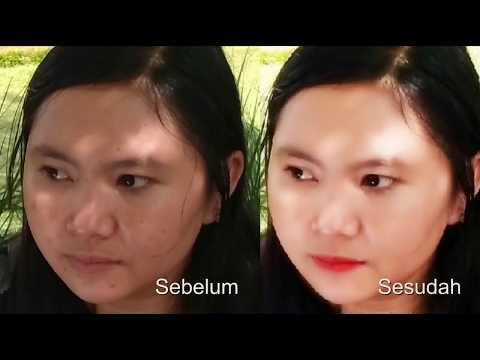 cara-menghaluskan-kulit-dan-menghilangkan-jerawat-di-wajah-dengan-photoshop