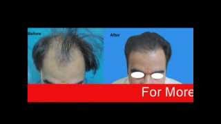 Olmec Hair Transplant Centre Delhi - Hair Transplant Delhi Thumbnail