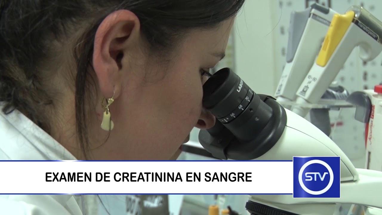 prueba de creatinina sérica para diabetes