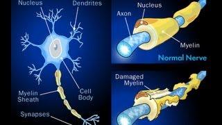 Multiple Sclerosis -Dr. Ed Park's Podcast 32