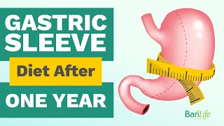 1 Year After Gasтric Sleeve: What your diet should look like