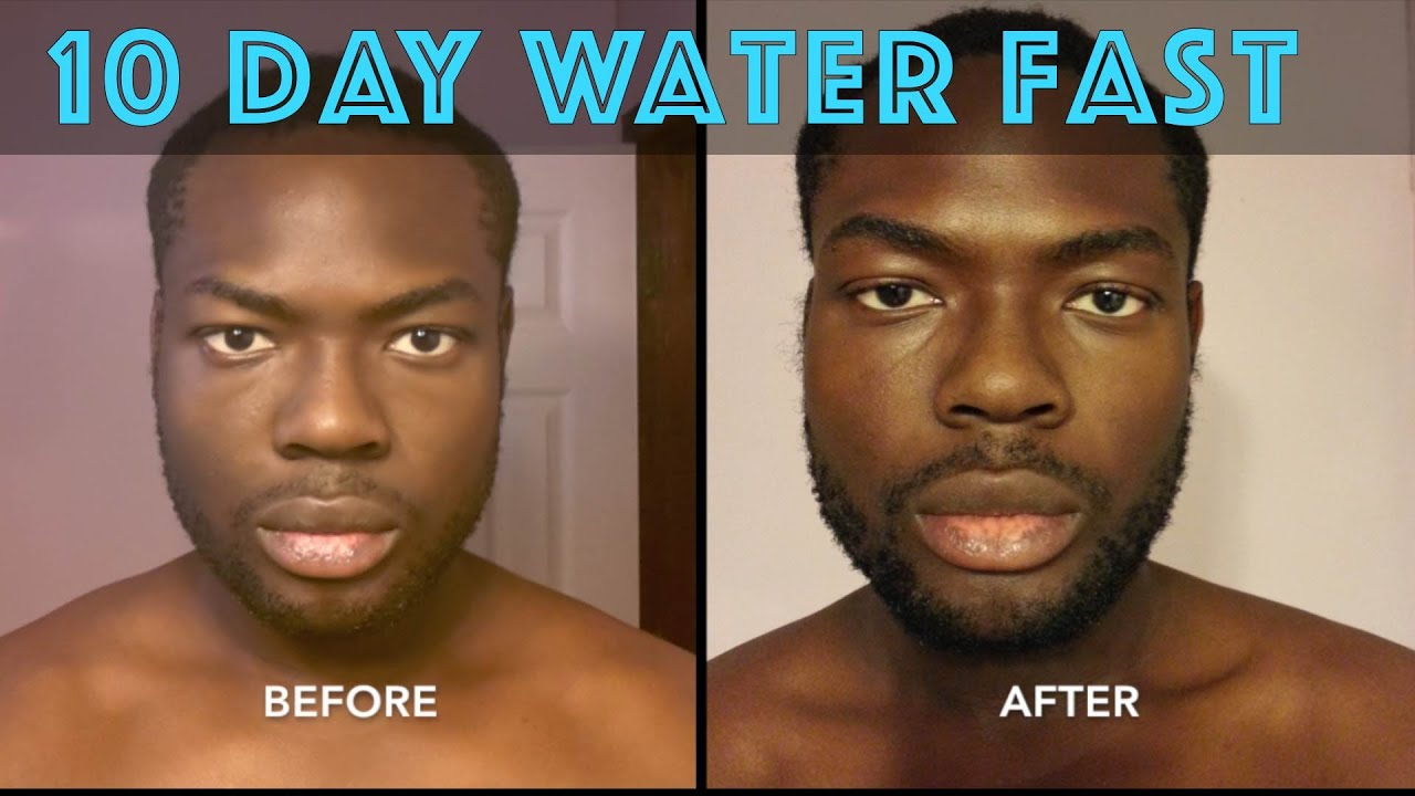 21 Day Water Fasting Results