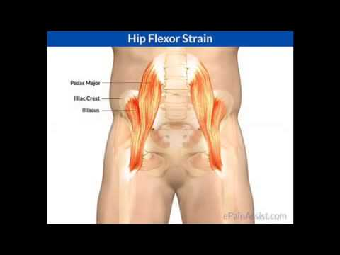 Sports medicine hip flexor strain - YouTube