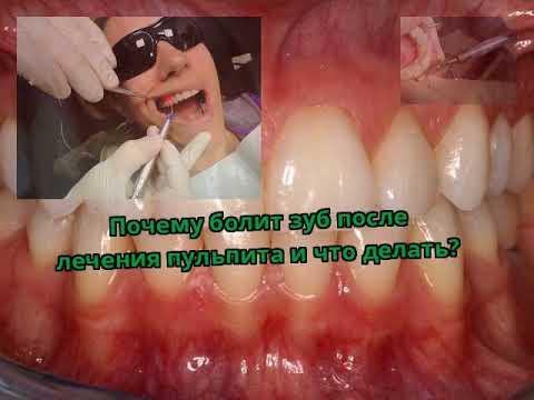 После лечения пульпита сколько болит зуб