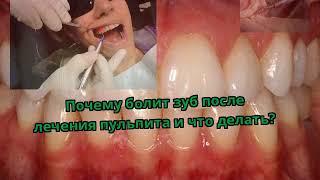 Почему болит зуб после лечения пульпита и что делать?(, 2017-12-09T08:59:11.000Z)