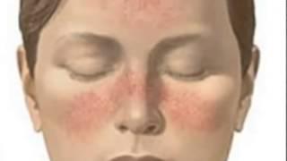видео Купероз на лице