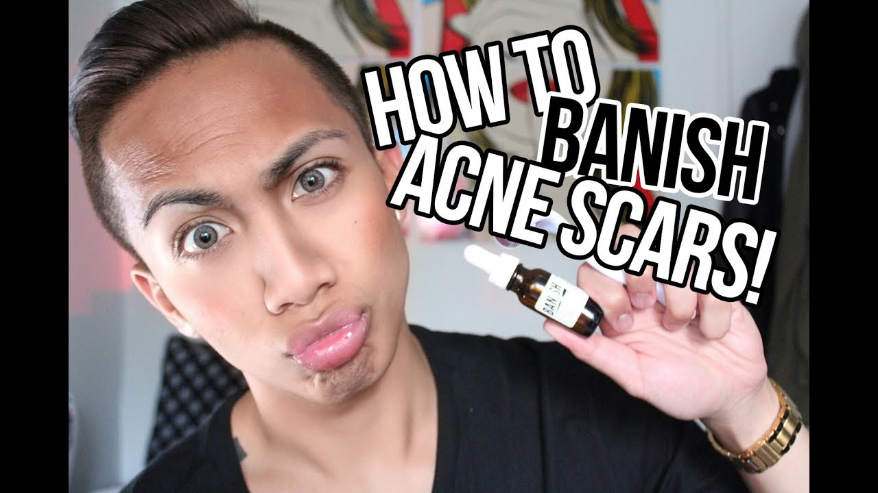 how to get rid of red acne scars youtube