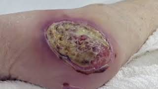 Wound Care Part 3: Types of Wounds