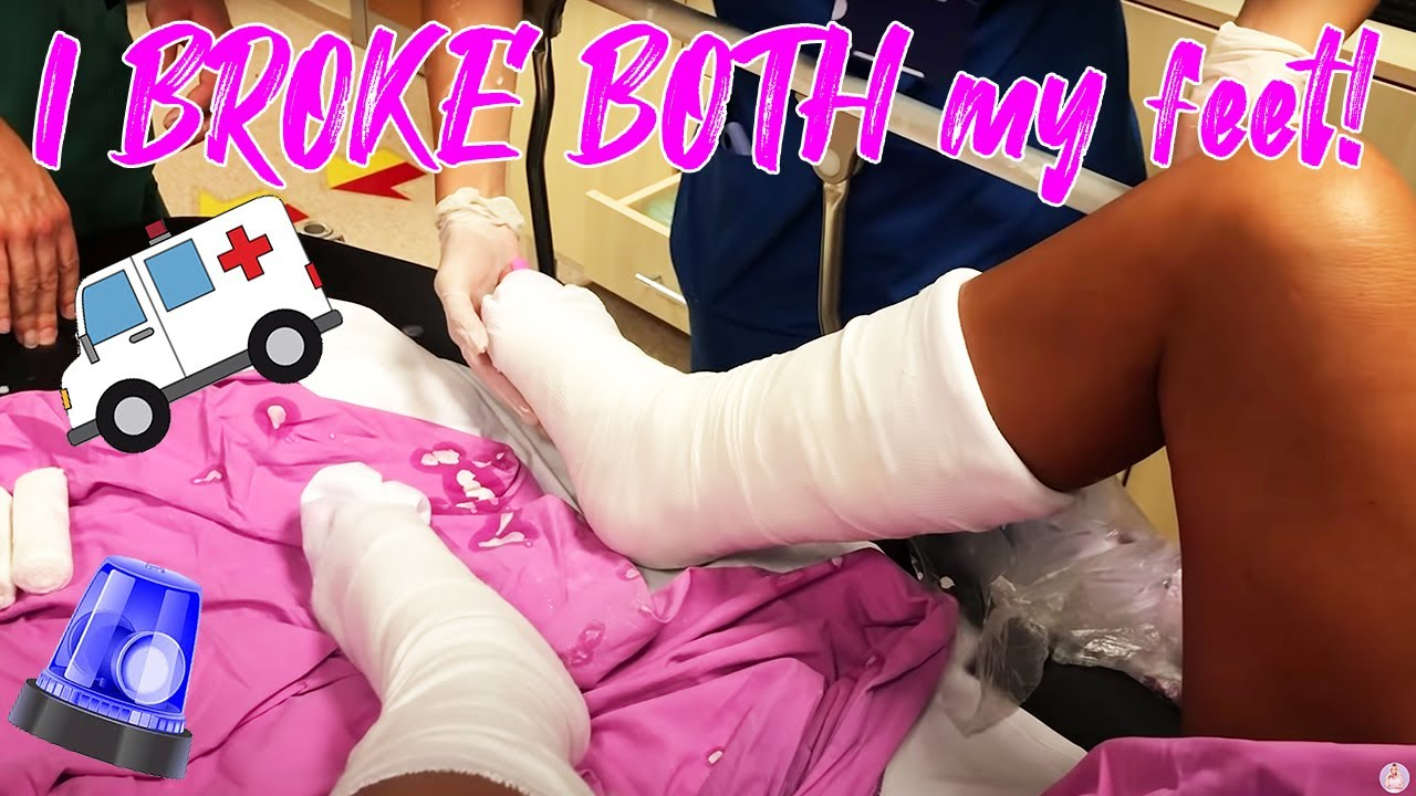 KATIE PRICE: TURKEY TRIP + MY BROKEN FEET