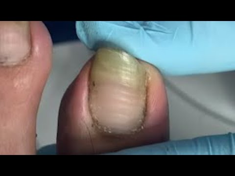 Extremely long nail trimming