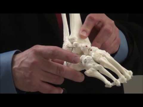 Treatment of Clubfoot Demonstration- Large Model