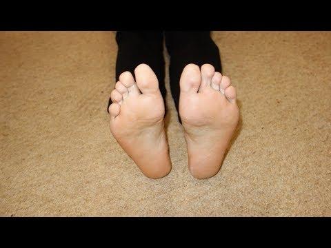 Лечение грибка на ногах народными средствами -средство от грибка. Онихомикоз
