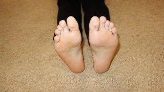 Лечение грибка на ногах народными средствами | #грибокнаногах #edblack(, 2015-05-15T10:37:54.000Z)