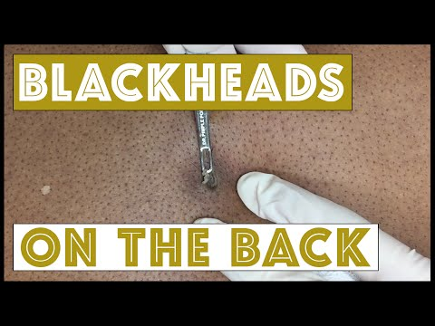 Here's a Blackhead turn cyst that kept on going - YouTube